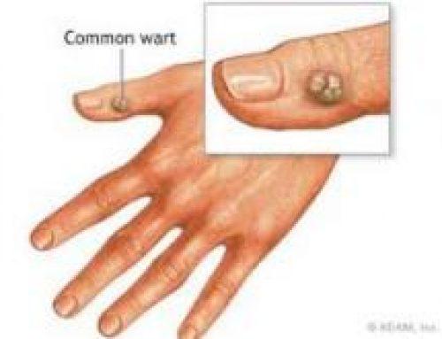 واکسن پاپیلوما ویروس انسانی(HPV)