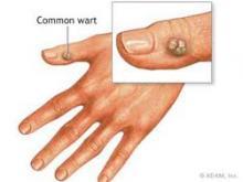 واکسن پاپیلوما ویروس انسانی(HPV) hpv دانستنيهاي پزشکي دانستنيهاي پزشکي hpv