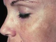 دغدغه لکه های پوستی (ملاسما) در بارداری melasma in pregnancy